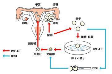 许朝钦讲述第三代试管婴儿技术的特点和优势