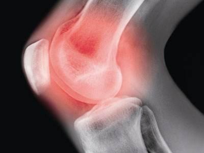 膝盖内侧半月板撕裂 北京京医医院疗法治愈半月板损伤无风险